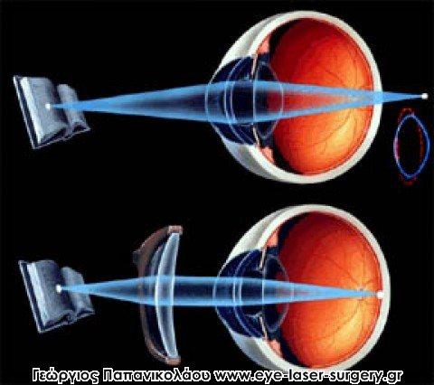 Πρεσβυωπία και όραση